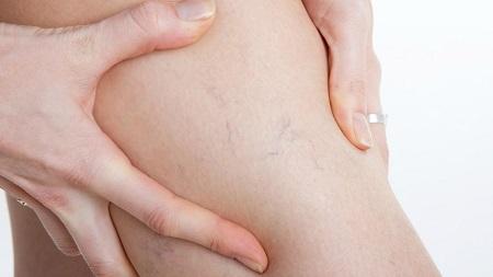 проявление варикоза при беременности