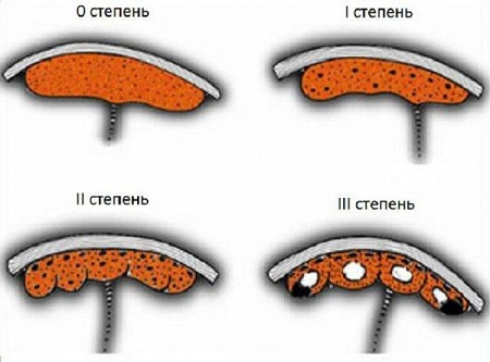 степени зрелости плаценты